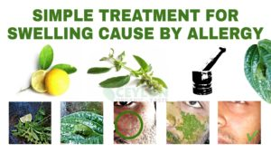 Simple-treatment-for-swelling-cause-by-allergy-ceylonorganictaste-K