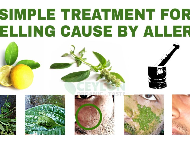 Simple Treatment for swelling caused by allergy